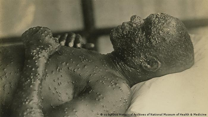 A smallpox patient (cc-by/Otis Historical Archives of National Museum of Health & Medicine)