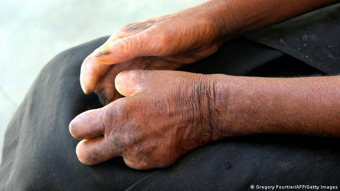 Symbolbild Lepraforschung Jacinto Convit (Gregory Pourtier/AFP/Getty Images)