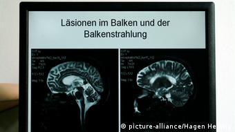 El cannabis ayuda a mejorar la calidad de vida de los pacientes de esclerosis múltiple.