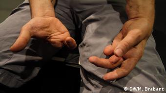 A picture showing Martin's hands after he lost fingers after stepping on an IED