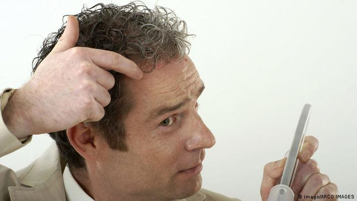 A man with a receding hairline, Copyright: imago/ARCO IMAGES