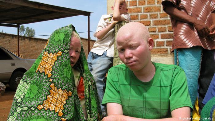 Albino Frauen in Ruyigi, Burundi