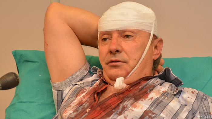 Slavo Kukić u bolnici