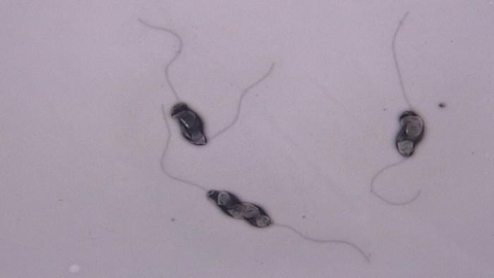09.07.2014 DW Fit und Gesund Campylobacter