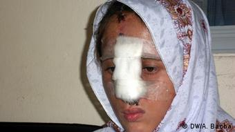 Pakistan Gewalt gegen Frauen Shahida (DW/A. Bacha)