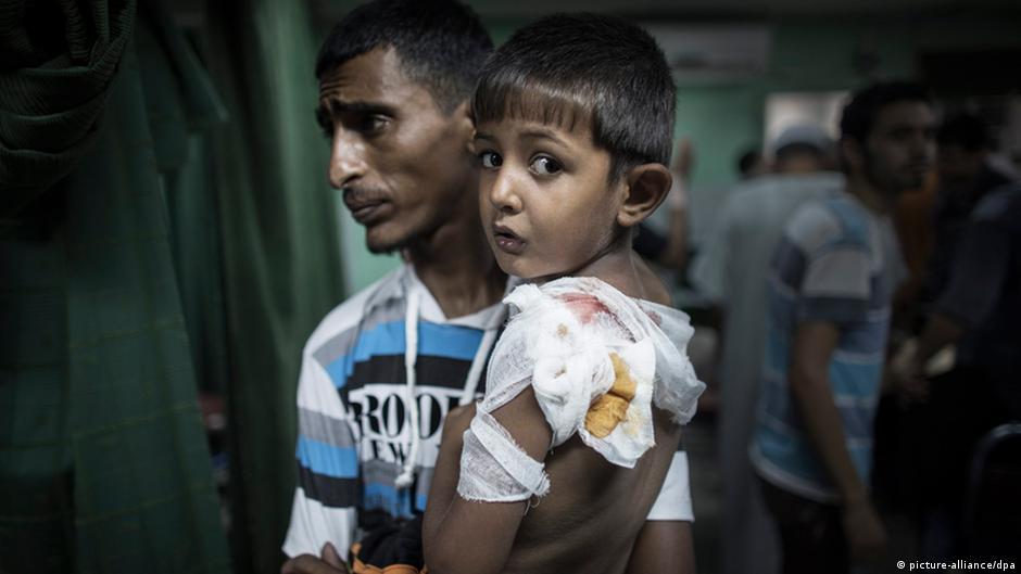 Ataques a escolas e alto número de vítimas civis elevam críticas a Israel | DW | 01.08.2014