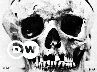 Esta reprodução do crânio de Beethoven encontra-se no Centro para Estudos sobre Beethoven da Universidade de San José, Califórnia. O crânio foi doado ao centro por um executivo californiano descendente do médico vienense Romeo Seligmann. Este recebera secretamente fragmentos do crânio de Beethoven em 1863, quando os restos do compositor foram exumados.