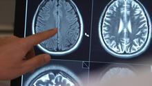17.09.2014 DW Fit & Gesund Epilepsie 2