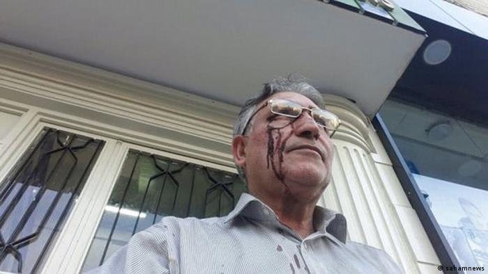 ضرب و شتم محمد نوریزاد در یکی از حرکتهای اعتراضی او، عکس از آرشیو