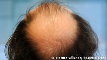 Symbolbild Haarausfall