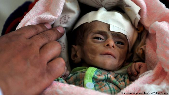 Unterernährtes drei Monate altes Baby (Foto: picture-alliance/dpa/EPA/Yahya Arhab)