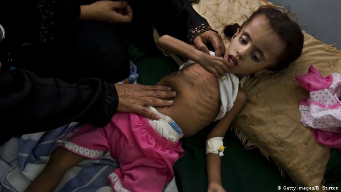 Unterernährung im Jemen (Getty Images/B. Stirton)
