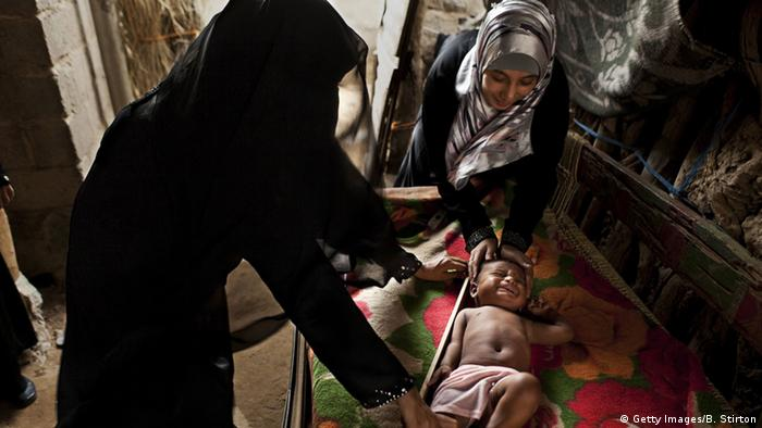 Unterernährung im Jemen