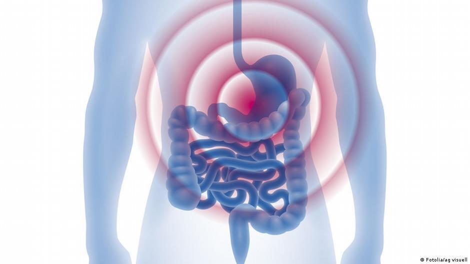 أسباب وطرق معالجة حموضة المعدة | DW | 05.06.2015