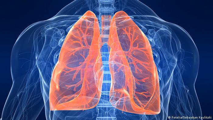 Symbolbild menschliche Lungen (Fotolia/Sebastian Kaulitzki)