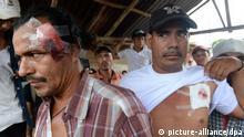 Nicaragua / Nicaraguakanal / Verletzte nach Krawallen