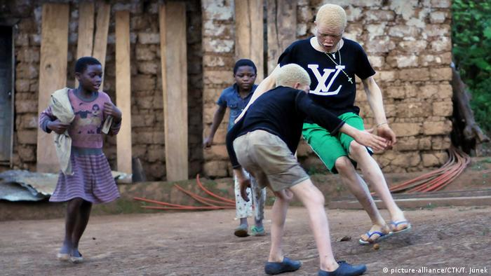 Em países como a Tanzânia, albinos são perseguidos devido a crenças e superstições (foto de arquivo)