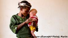 Tansania Albino Mutter und Kind