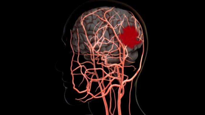 Grafik eines Schlaganfalls im Gehirn