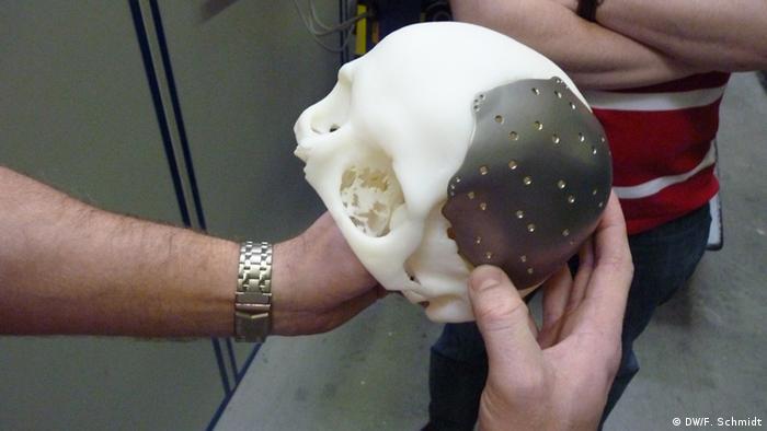 Schädelimplantat aus dem 3D Drucker