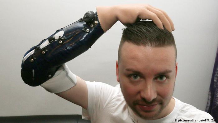 Österrreich Wien Milorad Marinkovic mit Bionic Hand