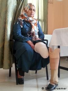Safa Hamdan sits in a chair, showing the stump where her leg was amputated, and her new prosthesis.