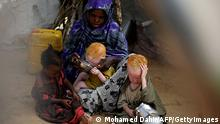 Symbolbild Albinos in Afrika