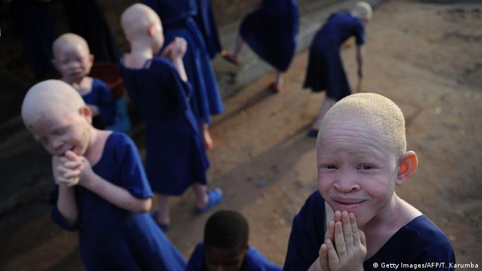 Tanzanya′da albinolar korku içinde   DÜNYA   DW   17.03.2015