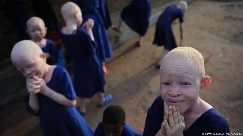 Albinos en Tanzania: amenazados y deportados   DW   13.06.2015