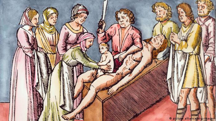 Кесарево сечение на рисунке 1506 года