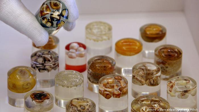 Желчные камни из коллекции берлинского Музея истории медицины