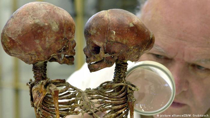 Скелеты сиамских близнецов из коллекции в Галле
