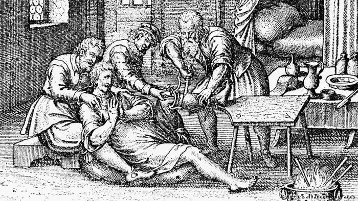 Иллюстрация 1633 года к изданию собрания трудов Вильгельма Фабри во Франкфурте-на-Майне