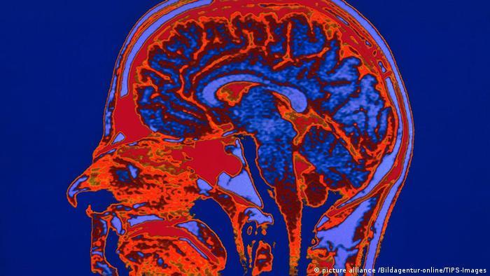 МРТ-изображение головы человека