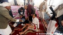 20.03.2015 *** ATTENTION EDITORS - VISUAL COVERAGE OF SCENES OF INJURY OR DEATH People react after being injured in bomb attack inside a mosque in Sanaa March 20, 2015. At least 16 people were killed when suicide bombers blew themselves up in two mosques in the Yemeni capital Sanaa on Friday during noon prayers, medical sources told Reuters. The mosques are known to be used mainly by supporters of the Shi'ite Muslim Houthi group which has seized control of the government. REUTERS/Khaled Abdullah TEMPLATE OUT