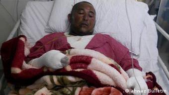 یونس عساکره دستفروش خرمشهری که در اثر خودسوزی درگذشت