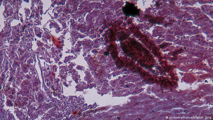 Mikroskopaufnahme Leberkrebs (picture-alliance/Klett/A. Jung)