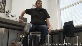 Österreich Beinprothese mit Gefühl