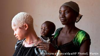 An albino girl with her mother and non-albino sibling