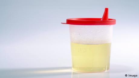 Urina pode ser fonte de energia?
