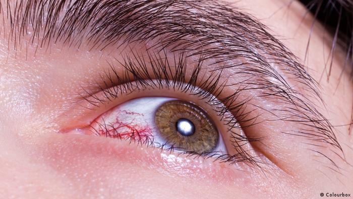 Auge mit roten Blutgefäßen (Colourbox)