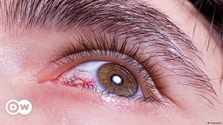 احمرار العين متى يصبح علامة خطر وكيف يمكن تجنبه منوعات نافذة Dw عربية على حياة المشاهير والأحداث الطريفة Dw 07 03 2016