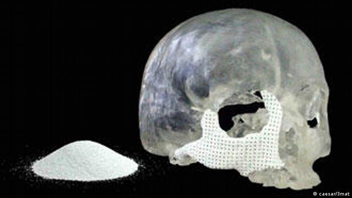 Knochenersatzimplantate aus dem 3D-Drucker NEU