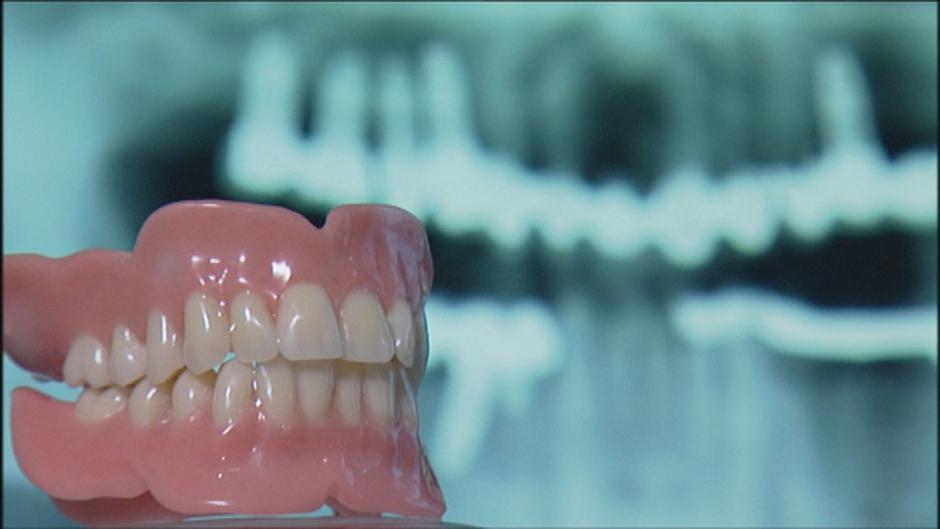 زراعة الأسنان فوائدها ومخاطرها منوعات نافذة Dw عربية على حياة المشاهير والأحداث الطريفة Dw 09 10 2015