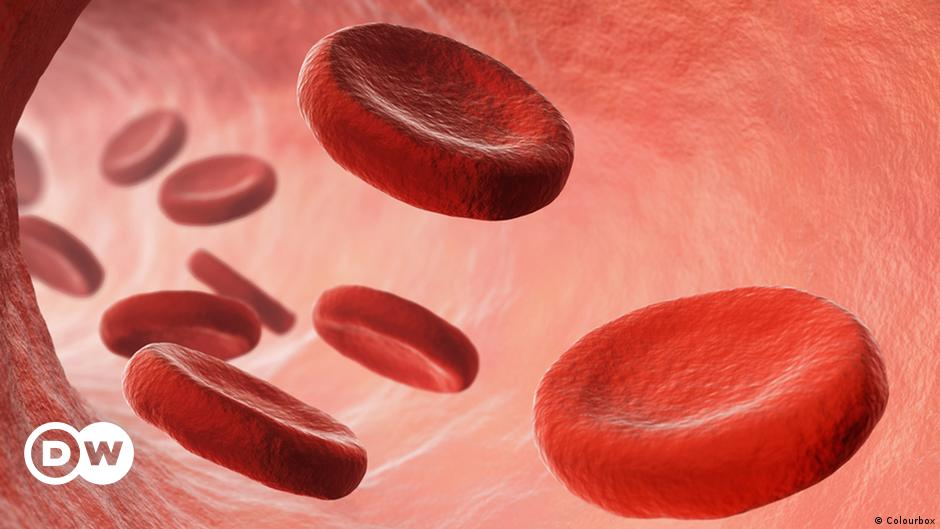 سرطان الدم تقنية جديدة تبشر بشفاء حالات ميؤوس منها منوعات نافذة Dw عربية على حياة المشاهير والأحداث الطريفة Dw 18 02 2016