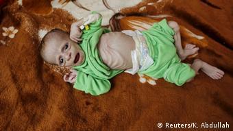 Jemen Kinder Hunger