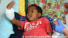Image #: 38503962 Zion Harvey, 8, of Baltimore, seems to marvel at his new right hand while in his hospital bed on July 27, 2015. Zion lost his hands and feet to a bacterial disease when he was 2, but had a double hand transplant at Children's Hospital of Philadelphia in early July 2015, the first pediatric double hand transplant. (Clem Murray/Philadelphia Inquirer/TNS) Philadelphia Inquirer/ TNS /LANDOV Keine Weitergabe an Drittverwerter.