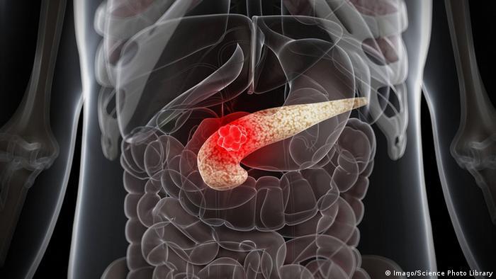Teuflischer Tumor: Bauchspeicheldrüsenkrebs | Wissen & Umwelt | DW ...