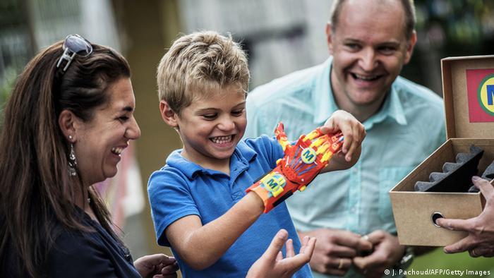 Maxence Handprotese 3D-Drucker
