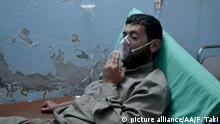 IDLIB, SYRIA - MAY 03: A Syrian man receives treatment at a field hospital following a suspected chlorine gas attack by Assad regime forces in Idlib, Syria on May 03, 2015. Firas Taki / Anadolu Agency